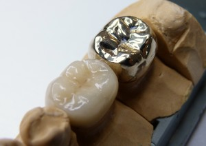 How Much Are Dentures >> Gold Restorations