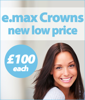 E Max Crowns now only £100 each